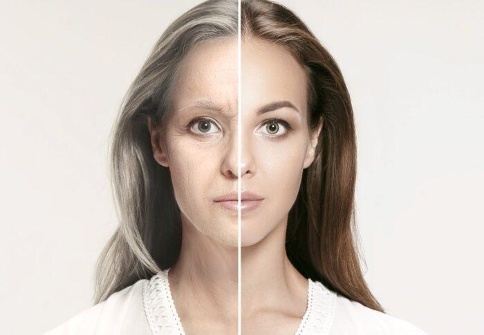 Tratamiento de Plasma Plexr vs siringomas y arrugas
