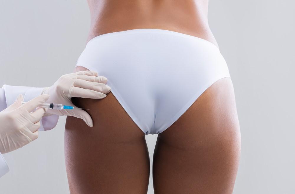 Aplicación de relleno en las nalgas de una mujer