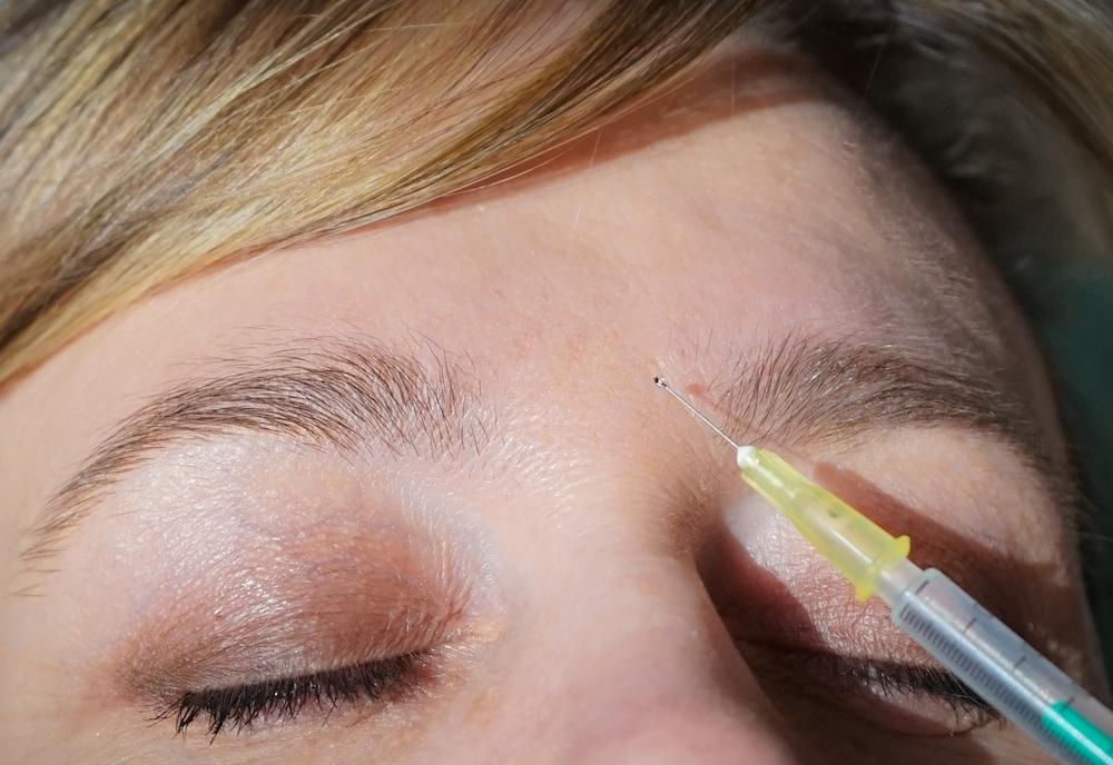 Aplicación de bótox contra el envejecimiento facial